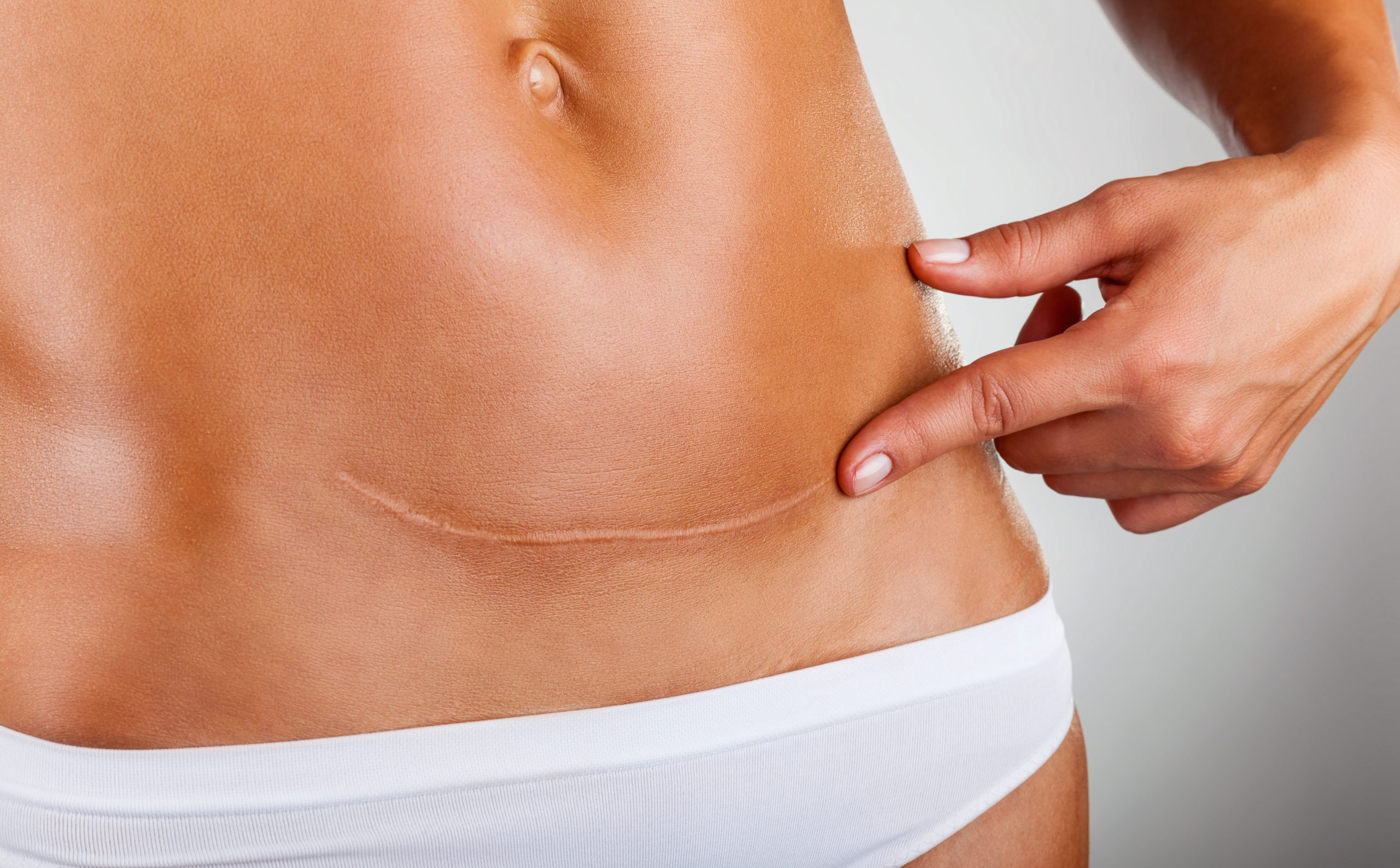 Managing Your Cesarean Scar May Be More Important Than You Think
